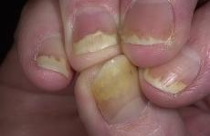 Псоріаз нігтів: види, стадії розвитку, лікування, народні методи
