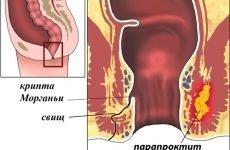 Ознаки розвитку парапроктита у дитини і показання до операції