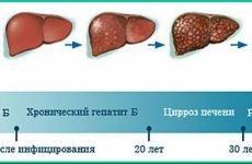 Запалення печінки у жінок і чоловіків: ознаки, симптоми і лікування в домашніх умовах
