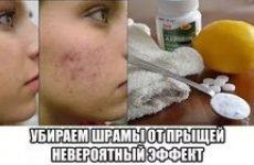 Як прибрати плями від прищів на обличчі: лікувальні мазі та маски, народні методи, косметологічні процедури