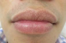 Гранули Фордайса на губах: лікування, симптоми освіти гранул, причини хвороби на обличчі та інших частинах тіла