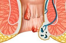 Традиційні та народні способи позбавлення від гемороїдальних шишок