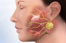 Хвороба свинка: причини, симптоми, наслідки, лікування