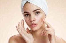 Запалені прищі на обличчі – як позбавитися, швидко прибрати запалення прища