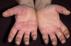 Цыпки на руках: причини, лікування, мазі, народні засоби