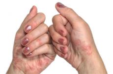Склеродермія: види, діагностика, лікування, народні методи