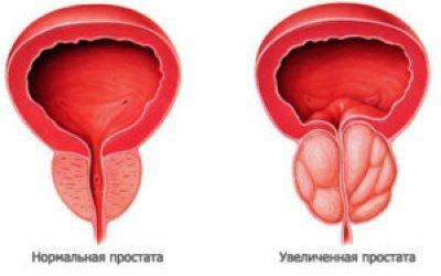 Неповне спорожнення сечового міхура у чоловіків лікування причини методи діагностика лікування допомогу