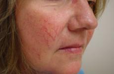 Судинна сітка на обличчі: причини, небезпеки, дієта, профілактика