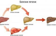 Дифузні зміни паренхіми печінки: що це таке, як лікувати, ознаки
