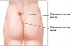 Pilonidal кіста: види, симптоми, лікування, наслідки