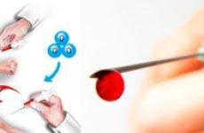 Переливання крові з вени в сідницю, схема лікування, показання та протипоказання