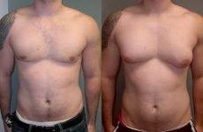 Мастопатія у чоловіків: причини, симптоми, лікування