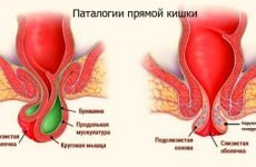 Причини печіння в задньому проході: у жінок і чоловіків, після дефекації