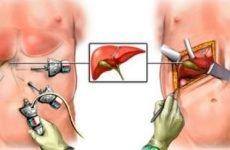 Лікування після видалення жовчного міхура: терміни відновлення, як відновитися