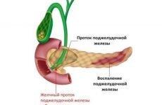 Лікування панкреатиту медикаментами – препарати, ліки