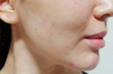 Прищі на вилицях у жінок: причини, лікування, як позбутися