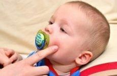 Прищі в роті у дитини (на язиці, яснах). Як позбутися від білих прищиків навколо рота дитини