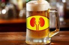 Можна пити пиво при каменях у нирках