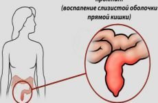 Запалення кишечника: симптоми і лікування народними засобами, препаратами, антибіотиками