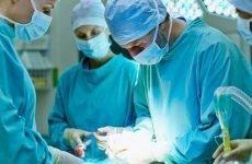 Відновний період після операцій з видалення апендициту