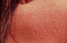 Фолікулярний кератоз: причини, симптоми, локалізація, лікування