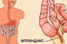 Ознаки апендициту у дітей: як визначити і розпізнати симптоми