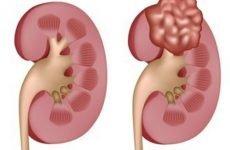 Ліпома нирки — що це таке, яке лікування безпечно
