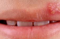 Лікування папіломи на внутрішній і зовнішній стороні губи