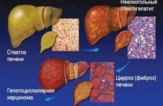 Стеатоз печінки: що це таке, симптоми і лікування, препарати, народні засоби, дієта