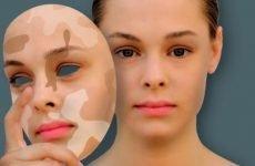 Білі плями на шкірі: небезпечні і безпечні, причини появи