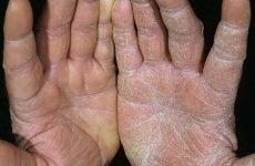 Амілоїдоз печінки: симптоми та діагностика, лікування