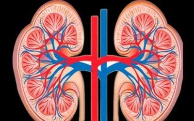 Фіброз нирок – що це таке, фибролипоматоз ниркових синусів – фіброма нирки