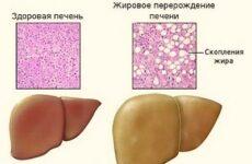 Гепатомегалія (збільшена печінка): що це таке, причини, симптоми і лікування, дієта