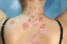 Симптоми шкірних захворювань