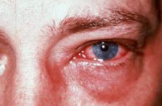 Що робити якщо опік очей після зварювання: методи лікування