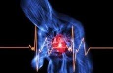 Стенокардія у чоловіків: ознаки, симптоми, тиск