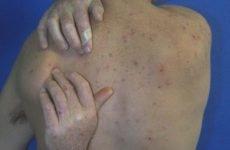 Плями на шкірі: як виглядають симптоми хвороб печінки, сірі і червоні плями, лікування хвороб печінки