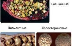 Камені в жовчному міхурі: симптоми і лікування без операції, дієта, народні засоби