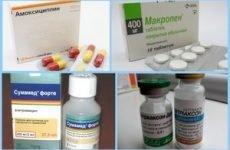 Антибіотики при фурункульозі в паху і на обличчі: тетрацикліни, Цефтріаксон, Амоксиклав і інші препарати