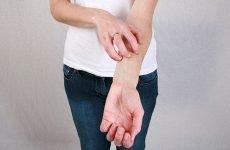 Дерматит на руках: симптоми, діагностика, лікування