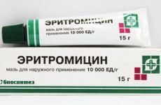 Эритромициновая мазь: інструкція по застосуванню проти прищів