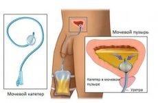 Сечовідний Катетер – для чого вводять в нирку