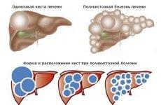 Полікістоз печінки: причини, лікування препаратами і народними засобами