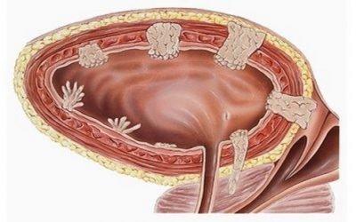 Лікування раку сечового міхура народними засобами у чоловіків і жінок, ніж лікувати з народної медицини