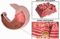Ерозія желудкаи кишечника, дванадцятипалої кишки: симптоми і лікування