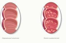 Ознаки розвитку ішемічного коліту та способи лікування патології