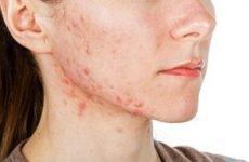 Прищі на обличчі і шиї – причини появи, як і чим лікувати