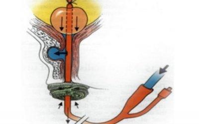 Промивання сечового міхура за допомогою катетера