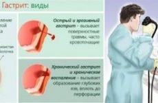Коле в лівому боці під ребрами: причини колючого болю