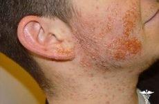 Піодермія у дорослих: симптоми і лікування, профілактика появи хвороби на обличчі